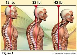 Anterior Head Translation Causes Neck And Shoulder Pain